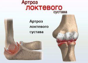 артрит суставов симптомы и лечение