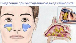 Катаральный гайморит - симптомы и лечение