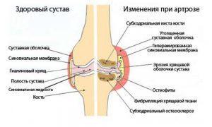 Гонартроз коленного сустава лечение народными средствами