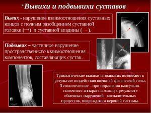 Суставы. Лечение суставов, виды повреждений и повреждения суставов