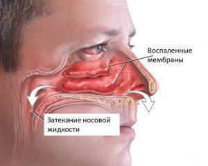 гайморит признаки и лечение