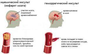 Инсульт: симптомы, лечение, последствия