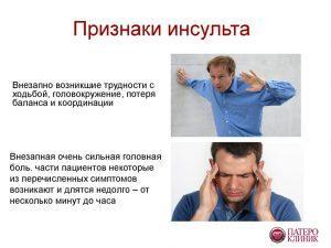 Инсульт: симптомы и признаки инсульта, причины возникновения
