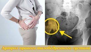 Артроз суставов: причины, симптомы, лечение
