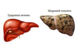 Лечении жирового гепатоза печени народными средствами - Узнайте больше