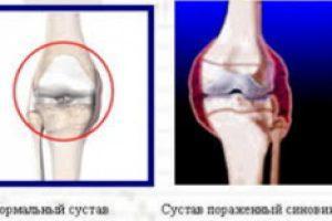 Синовит коленного сустава — лечение народными средствами