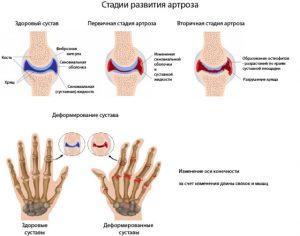 Лечение артрита и симптомы заболевания