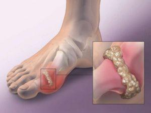 Как лечить артроз суставов – народные методы лечения!