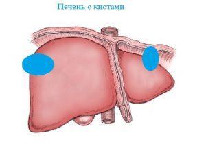 Лечение кисты печени