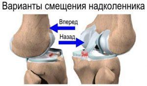 Растяжение связок коленного сустава: первая помощь и лечение