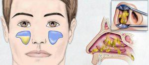 двухсторонний гайморит лечение