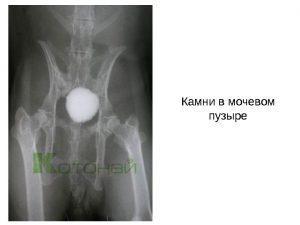 Камень в мочевом пузыре – симптомы и методы лечения