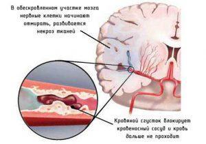 Инсульт — лечение инсульта народными средствами
