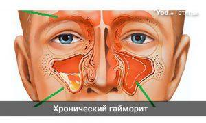 Что такое хронический гайморит, симптомы и лечение у взрослых