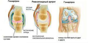 Артроз коленного сустава лечение медикаментозными и народными способами