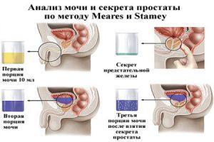 Схемы и методы лечения простатита