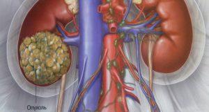 Боли при хроническом простатите: место локализации и способы лечения