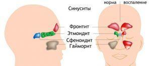 Хронический гайморит: симптомы и лечение у взрослых и детей, код по МКБ-10