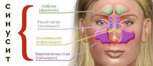 Катаральный гайморит: симптомы и лечение