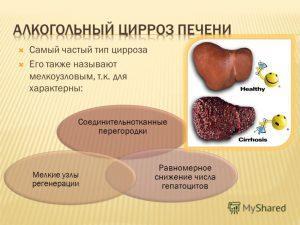 Цирроз печени: лечение народными средствами не менее эффективно, чем медикаментозное