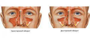 Что такое катаральный гайморит?