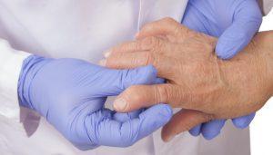 Болезни суставов рук симптомы лечение и профилактика