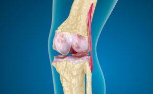 Острый артрит суставов: симптомы и лечение