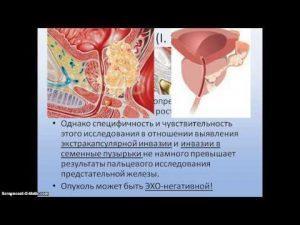 Гиперплазия простаты, или аденома 1, 2 и 3 степени: лечение, вопросы и ответы