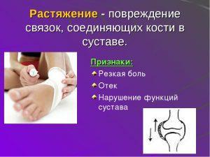Вывихи суставов. Первая помощь и лечение вывихов суставов