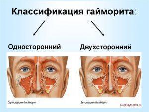 Двухсторонний гайморит: симптомы, причины и лечение