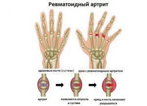 Артрит суставов пальцев рук: симптомы и лечение заболевания