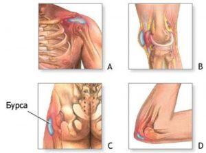 Хронический бурсит коленного сустава