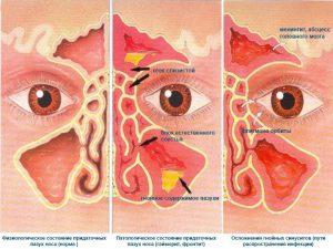 Профилактика гайморита при насморке: основные методы