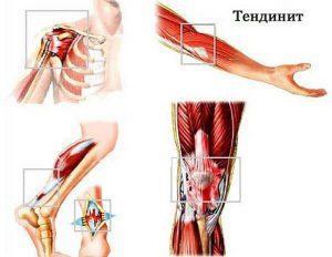 Симптомы и лечение воспаления локтевого сустава