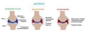 Артроз коленного сустава: симптомы, степени, лечение, народные средства
