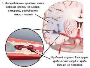 Ишемический инсульт головного мозга: признаки, первая помощь и лечение