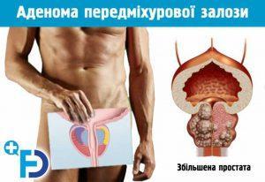 Простатит у мужчин – симптомы и лечение