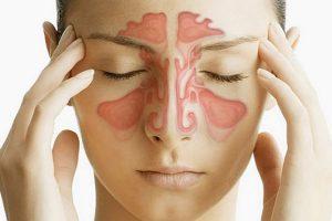 Эфирные масла для лечения синусита и гайморита