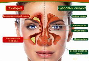 Хронический гайморит у взрослых симптомы и лечение
