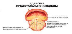Аденома простаты: виды операции и показания