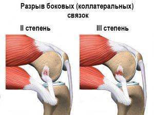 Профилактика растяжения боковой связки коленного сустава что хорошо реагируют суставы
