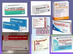 Лечение инсульта лекарствами и народными средствами
