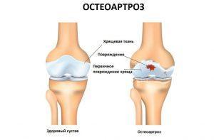 деформированные суставы лечение