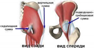 Тазобедренный сустав беспокоит и болит: что делать и как лечить