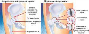 Симптоматика и лечение артрита суставов