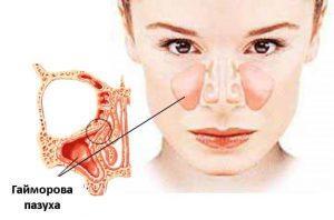 Симптомы, причины и лечение обострения гайморита