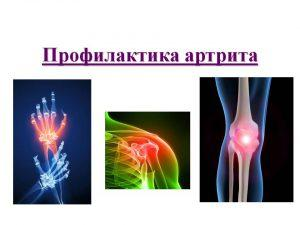 Воспаление суставов: причины, симптомы, лечение заболеваний, профилактика
