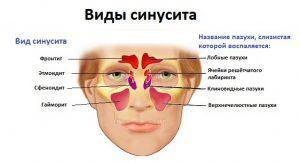 Что такое катаральный гайморит