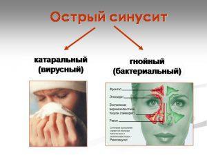 гайморит носа лечение