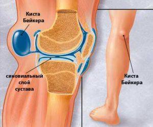 Чем лечить артрит коленного сустава, особенности